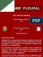 248701176-Derrame-Pleural.pdf
