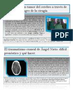 Noticias/Neurocirugía