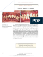 Leukemic Gingival Infiltration