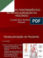 Revascularização Do Miocárdio2