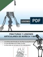 lesionesdelamano-170227160618.pdf