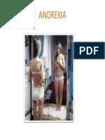 Anorexia.pptx