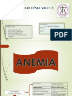 Anemia y Leucemia Leve Gravef