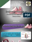 sobredentadurasc2-140526174939-phpapp01
