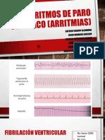 Ritmos de Paro Cardiaco (Arritmias)