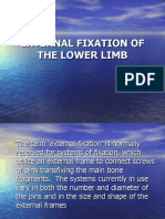 External Fixation of the Lower Limb 2