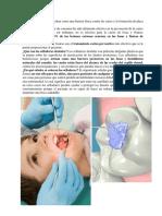 Los Selladores Dentales