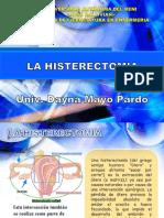 La Histerecomia