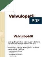 valvulopatii-mitrale.ppt