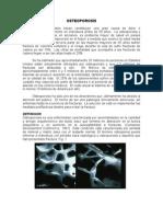 17 Osteoporosis