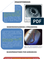 esofagostomiasis