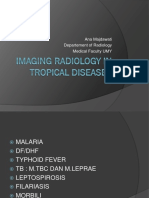 Imaging Radiology in Tropical Diseases