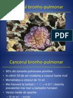 5Cancerul pulm.ppt