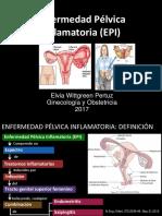 Enfermedad Pélvica Inflamatoria MIO