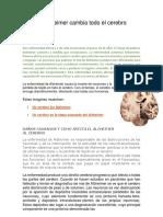 El Alzheimer Cambia Todo El Cerebro