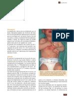 escabiosis.- caso clinico 2pdf.pdf