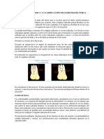 Concepto de Furca y Clasificación de Lesiones de Furca