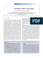 SINDROME MERRF.pdf