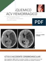 acv isquemico vs hemorragico.pptx