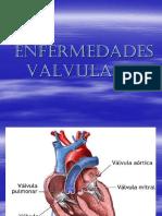 4-ENFERMEDADES-VALVULARES