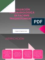 Evaluación e Intervención Fonoaudiólogica en TQT