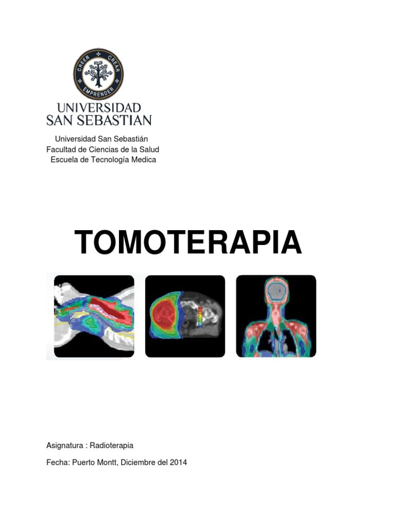 tomoterapia de próstata