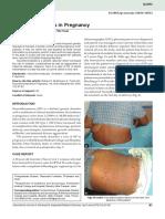 Neurofibromatosis in Pregnancy