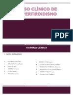 Caso Clinico Hipertiroidismo