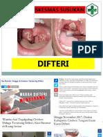 presentasi difteri