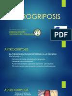 Artrogriposis.pptx