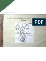 Cranial Nerves Part 2