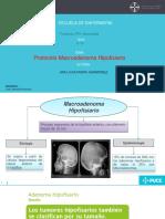 presentacion Macroadenoma Hipofisiario