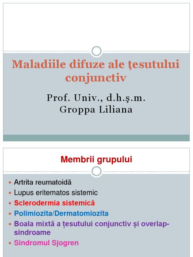 Diferite modificări ale ficatului - Clasificarea bolilor difuzive ale țesutului conjunctiv
