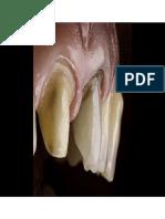Sellado Inmediato de La Dentina