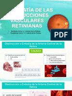 Retinopatía de Las Obstrucciones Vasculares Retinianas Hta Dm