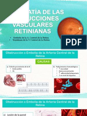 Cuadros retinianos con hipertensión