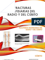Fractura Única de Radio