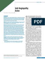 Angiopathy Stroke