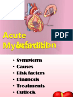 Acute Myocardial Infraction