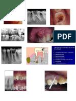 Imagenes Endodoncia Para Pegar
