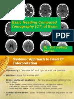 basicreadingcomputedtomographyctofbrain-110513193935-phpapp02