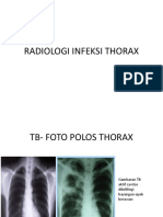 Radiologi Infeksi Thorax