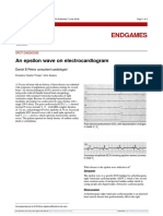 An Epsilon Wave on ECG Caso Clinico BMJ