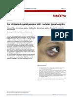 Placca Palpebrale Con Linfangte Nodulare- Caso Clinico BMJ