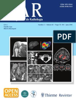 resonancia magnética libre de próstata multiparamétrica radiológica romana