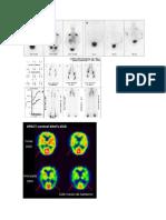 imagenes de cintigrama oseo y cerebral.docx