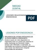 Lesiones Por Endodoncial