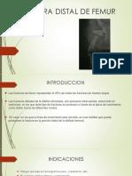 Fractura Distal de Femur