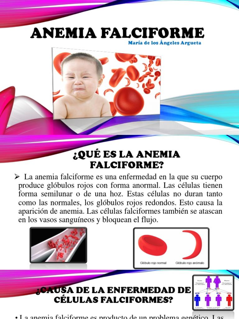 Causas de la anemia falciforme pdf