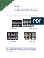 Los Colores en Odontología